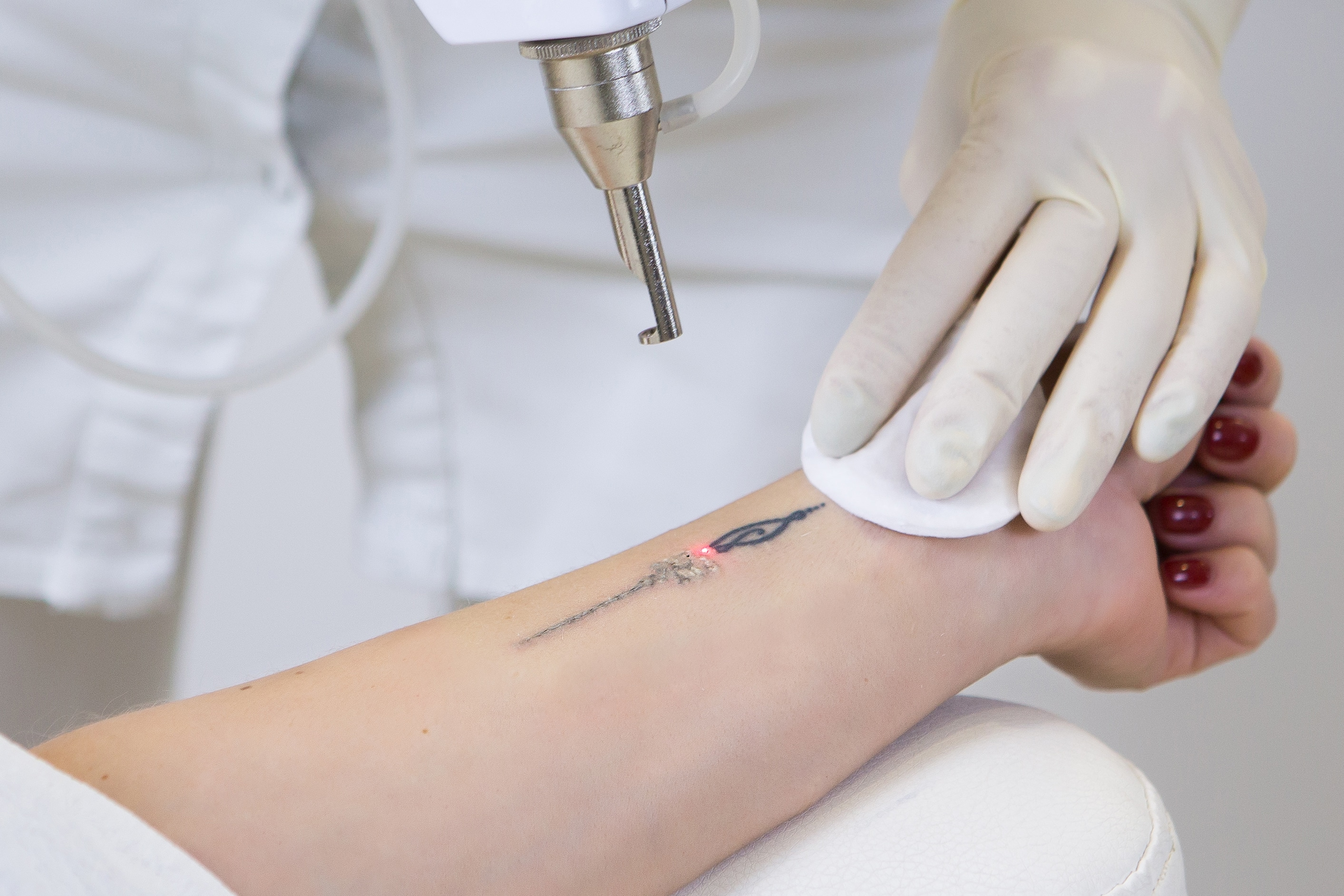 How Much Does LaserTattoo Removal Cost? Botox and Other Price List.
